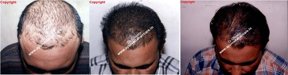 Alopecia universalis in india